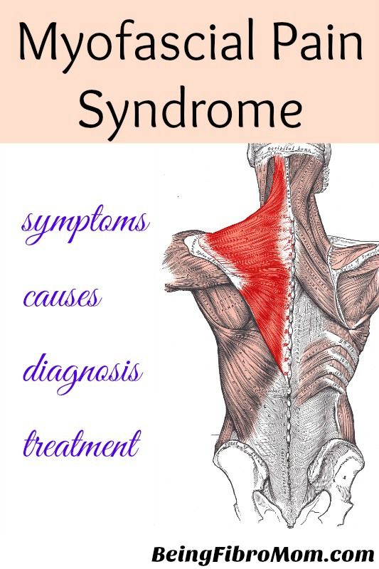 Myofascial Pain Syndrome #MPS #beingfibromom