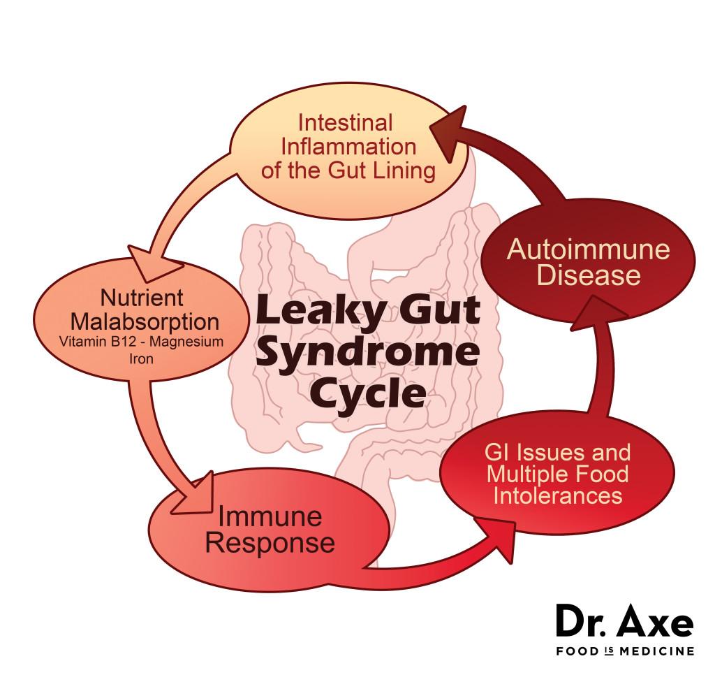 Leaky Gut Syndrome #fibromyalgia #leakygut